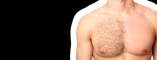Laserska epilacija, prolećni popust za muškarce!