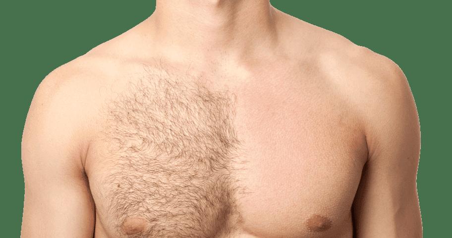 muške grudi obrasle dlakama sa desne strane, epilirana leva strana