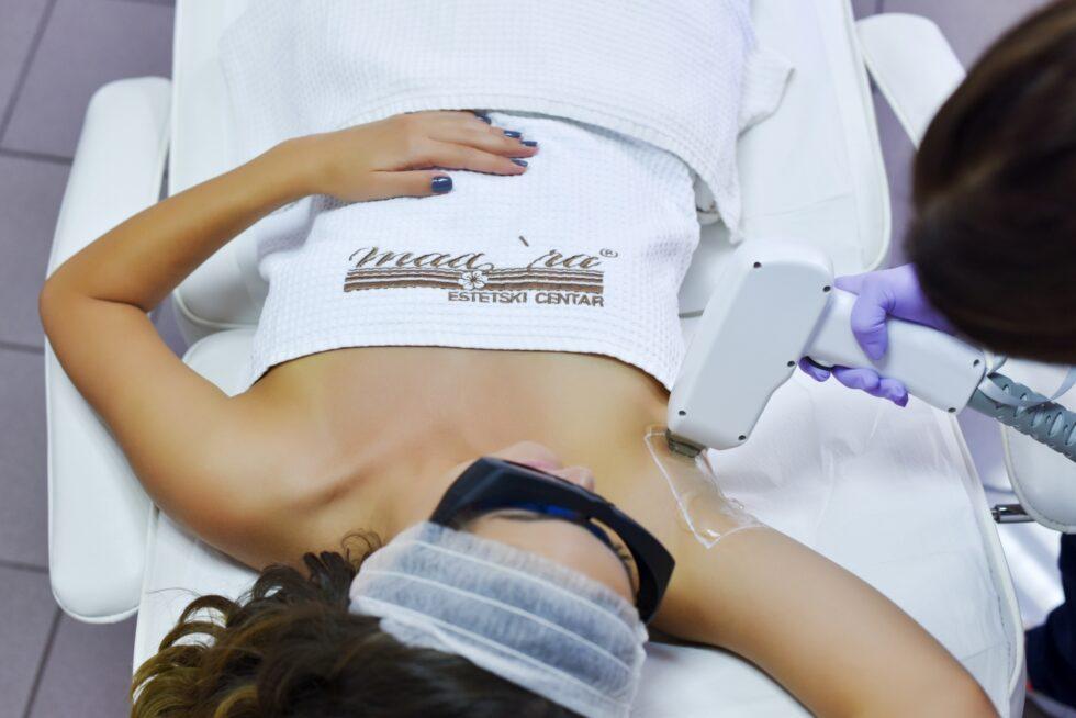 laserska epilacija pazuha diodnim laserom, diodni laser za epilaciju, DiodeIce laser za trajnu epilaciju