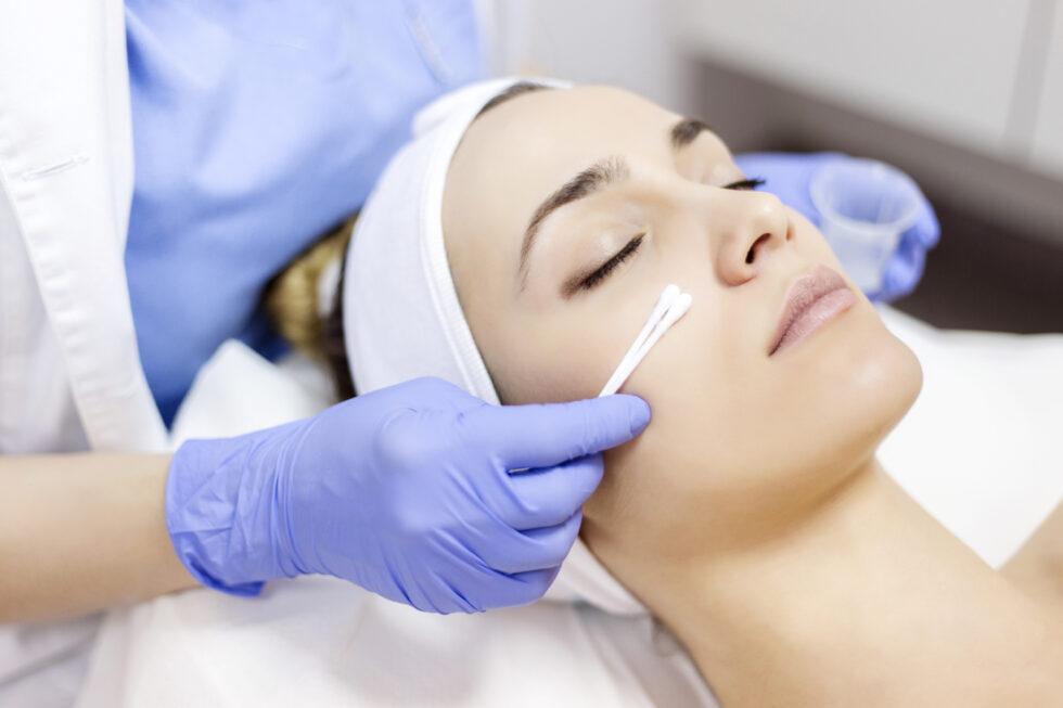 Piling za masnu kožu, hemiski piling lica, nanošenje hemijskog pilinga na lice
